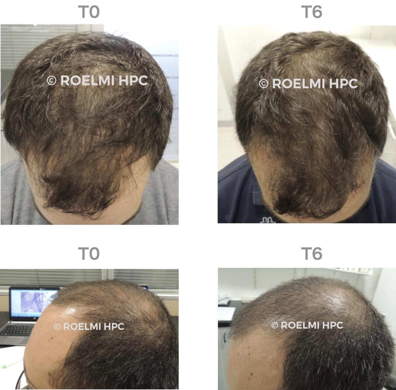 髪の成長と太さの明らかな改善