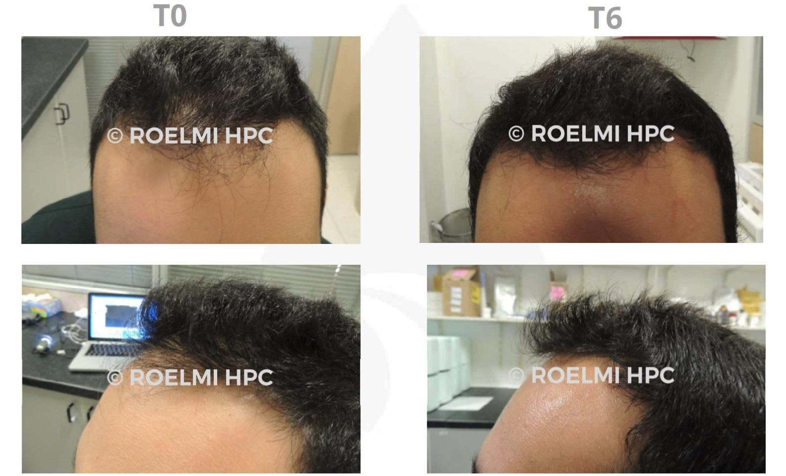 抜け毛の改善